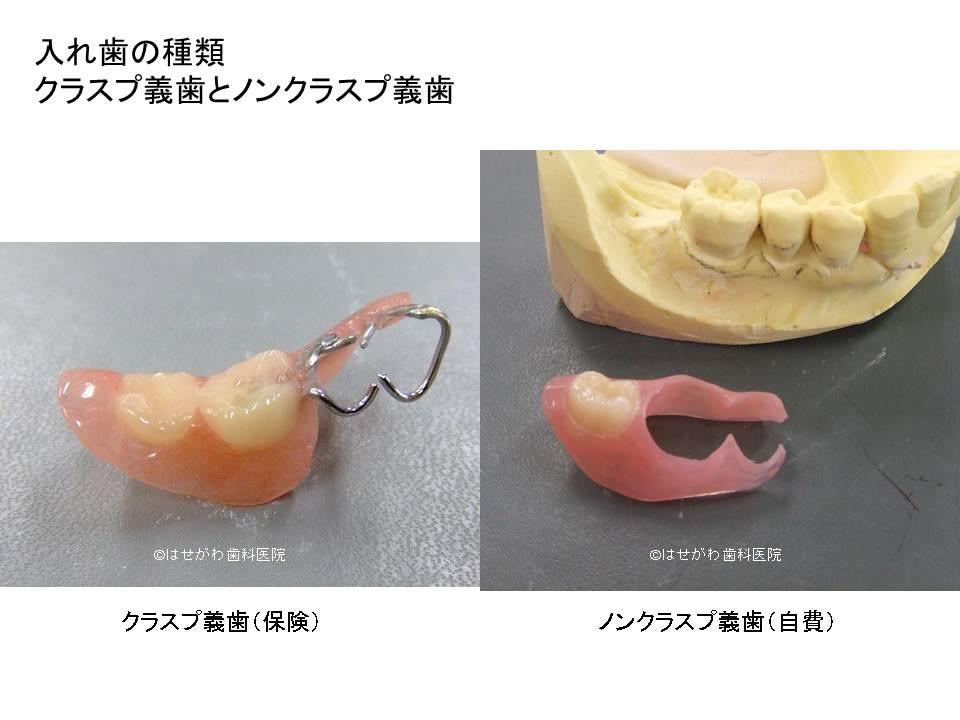 入れ歯保険と自費