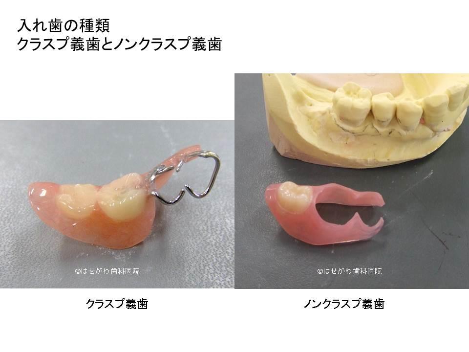 入れ歯の違い