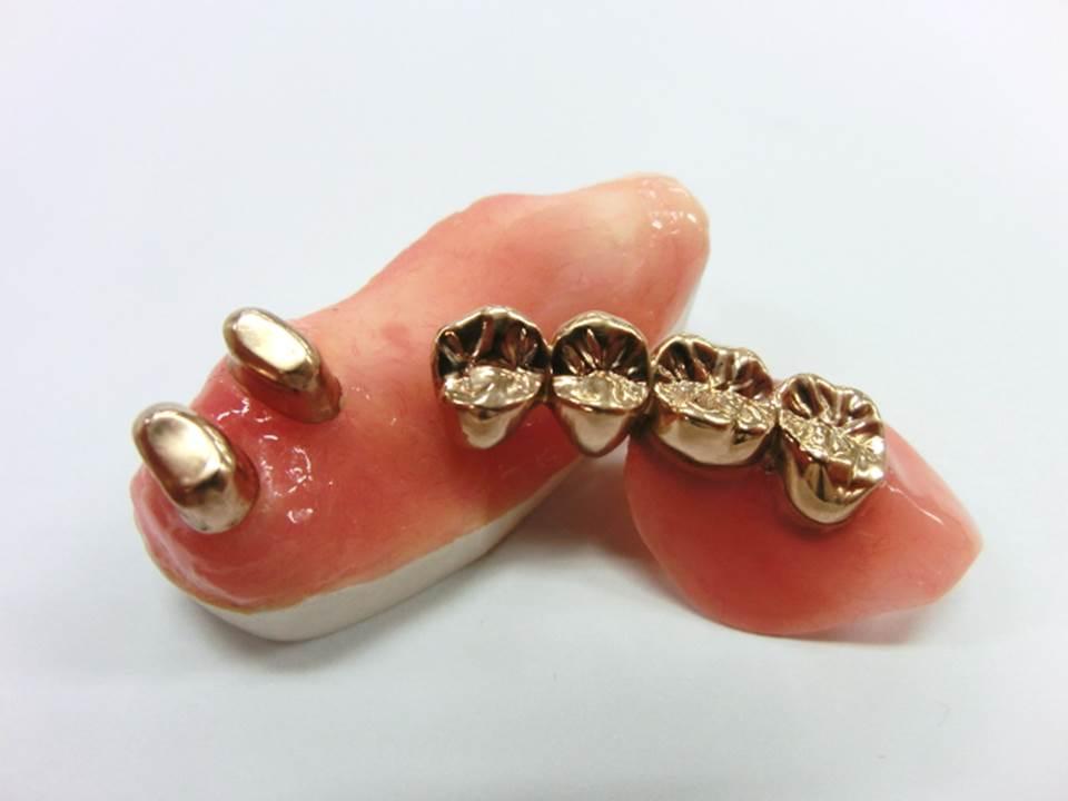 コーヌス・テレスコープ義歯とは